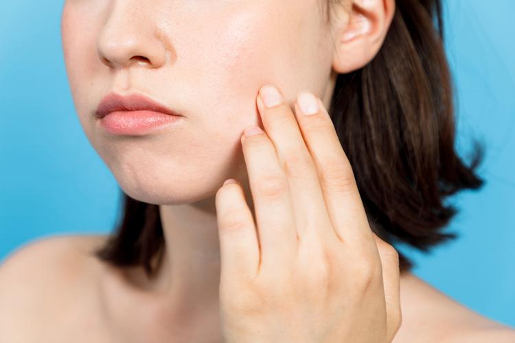 顔にできた赤ニキビのおすすめ対策法