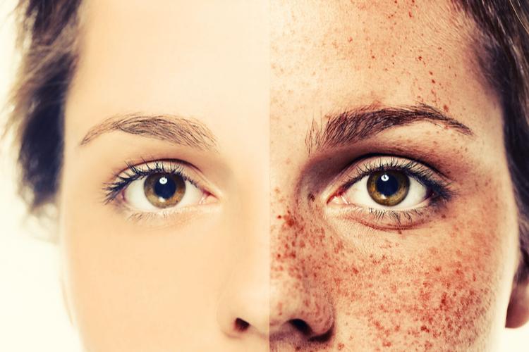 紫外線対策、美白ケアをしてシミ知らずのお肌に
