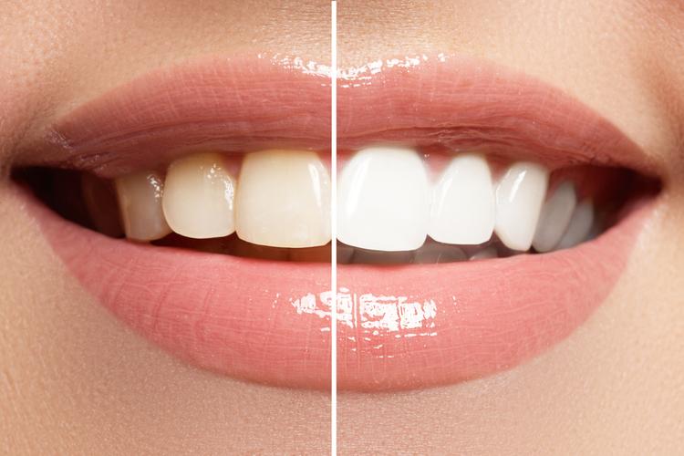 ありがちな歯のお悩みの原因とは
