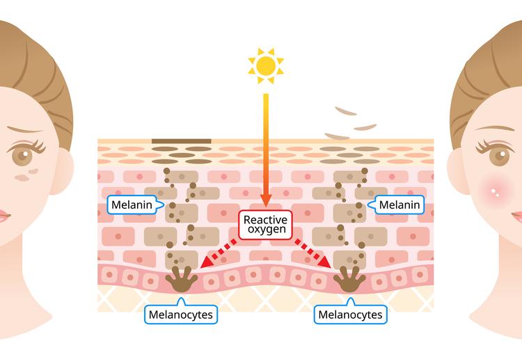 夏の紫外線によるシミ・そばかすのダメージ