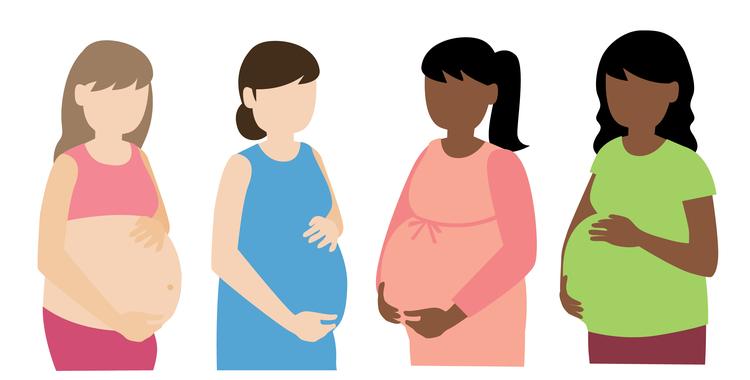 「妊娠線」ができやすい人とは