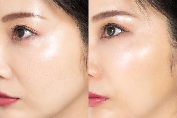 Before/2週間後の肌比較
